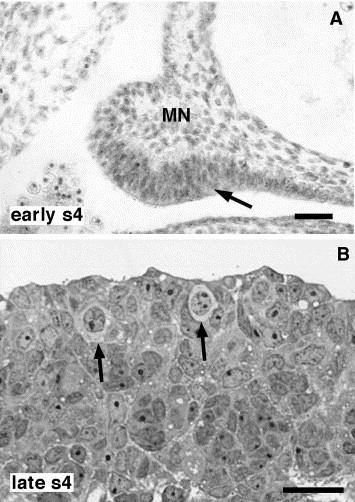 Testis-like development of gonads in female moles  New