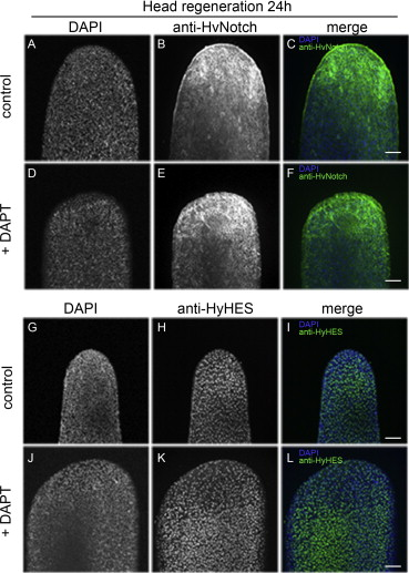 Notch-signalling is required for head regeneration and