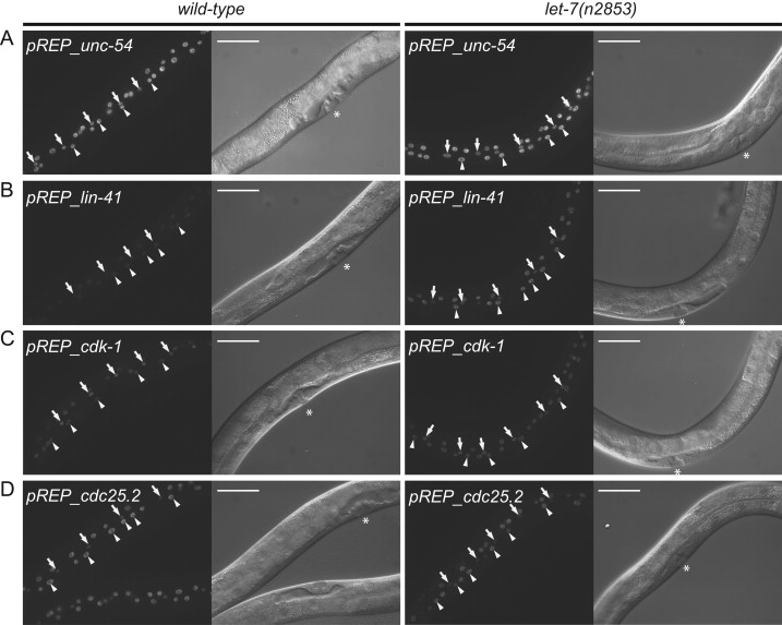 A genetic interactome of the let-7 microRNA in C  elegans