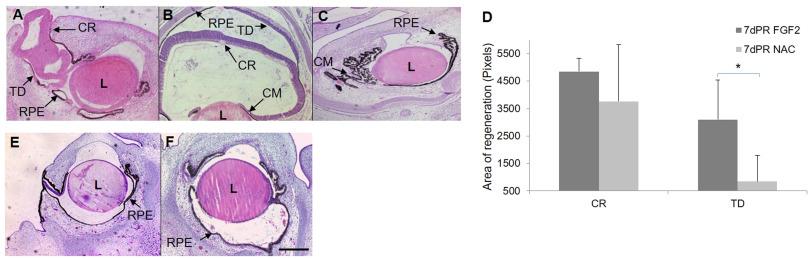 isoniazid neuropathy mechanism