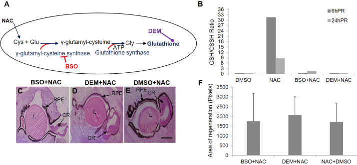 A biochemical basis for induction of retina regeneration by