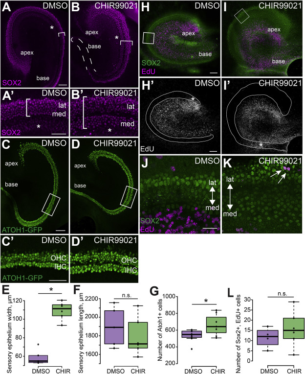 GSK3 regulates hair cell fate in the developing mammalian