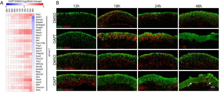 Transcriptional profiling of murine retinas undergoing semi