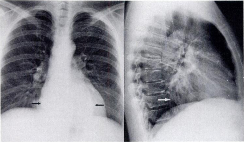 Giant Esophageal Varices: An Unusual Cause of a Posterior ...