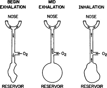 Oxygen conservation and oxygen conserving devices in chronic lung diagram of the oxymizer pendant a during early exhalation dead space gas moves from the nasal prongs toward the reservoir b during the ensuing larger aloadofball Images