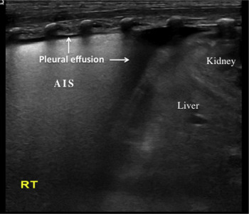 Lung Ultrasonography to Diagnose Transient Tachypnea of the