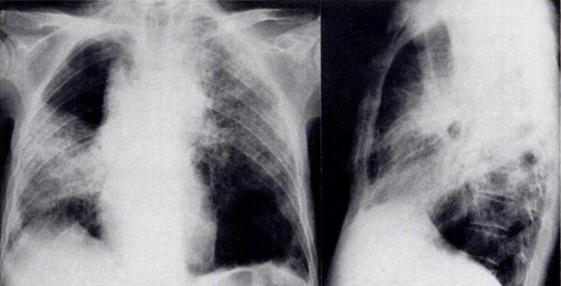Infection due to Pneumocystis carinii Simulating Lobar