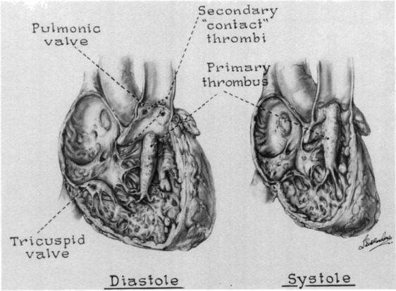 Right Ventricular Outflow Obstruction From Thrombus With Small