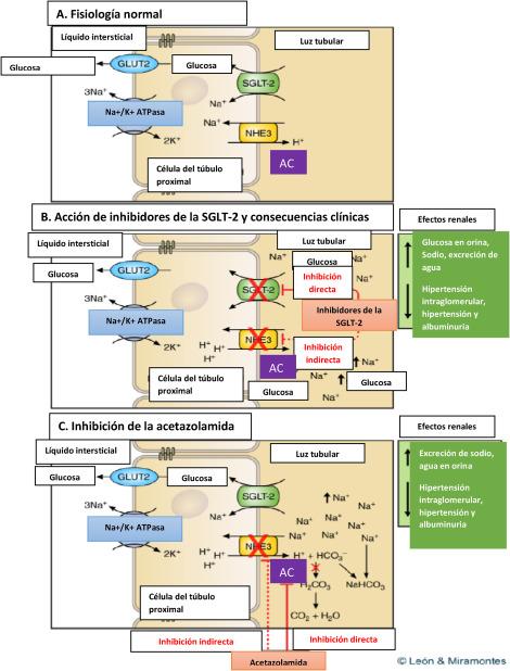 diuréticos tiazídicos potasio y el desarrollo de diabetes