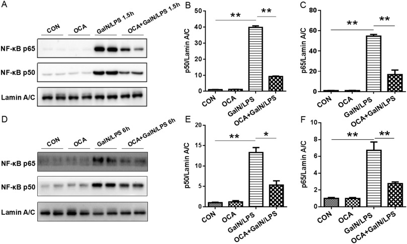 Obeticholic acid differentially regulates hepatic injury and