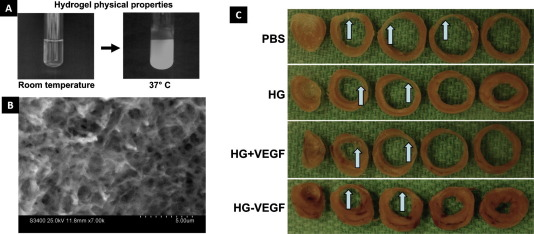 An overview of injectable polymeric hydrogels for tissue