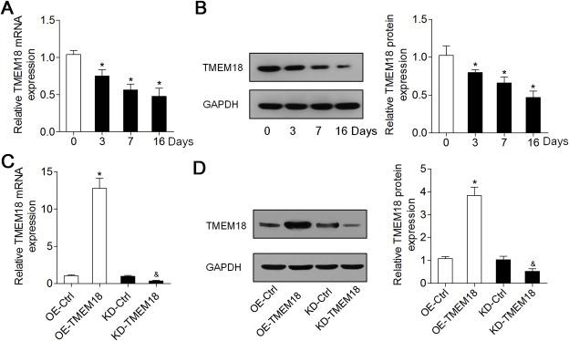 TMEM18 inhibits osteogenic differentiation of rat bone