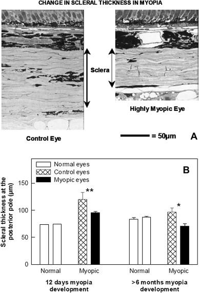 Myopia tünetek. A kóros rövidlátás talaján kialakult súlyos látásromlás   Szemészeti Klinika