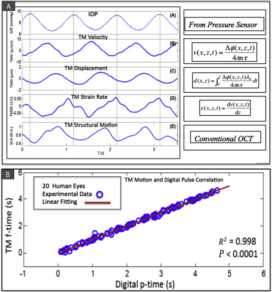 Aqueous outflow regulation: Optical coherence tomography implicates ...