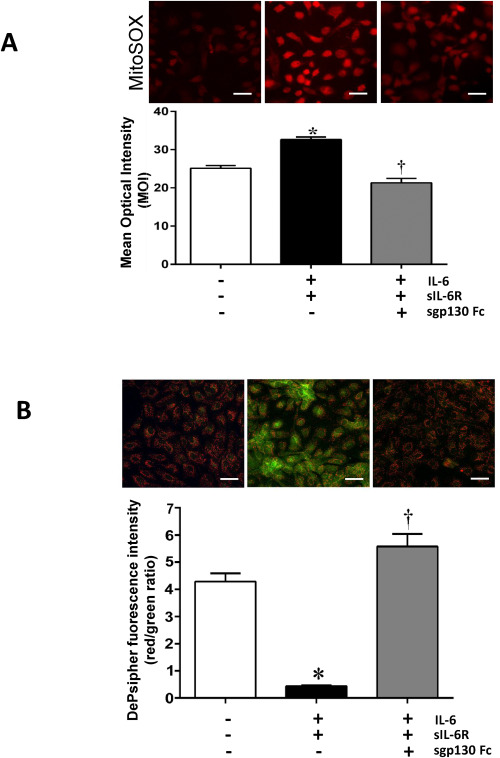 Inhibition of interleukin-6 trans-signaling prevents