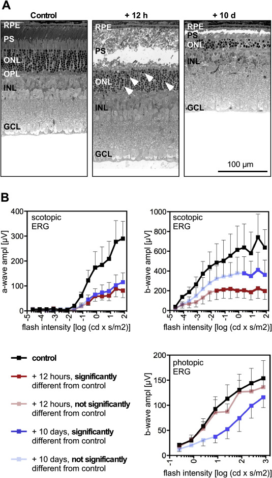 Light stress affects cones and horizontal cells via rhodopsin