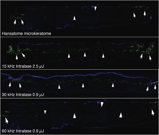 karma și miopia videoclip care îmbunătățește vederea