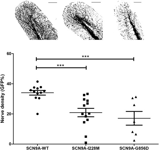 Expression of pathogenic SCN9A mutations in the zebrafish: A