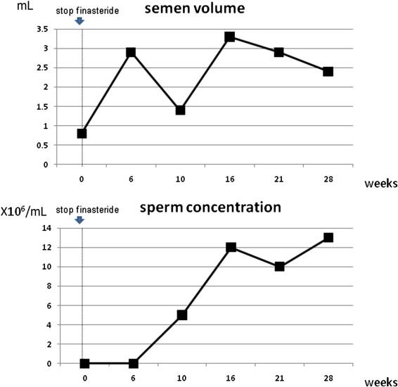 Finasteride Associated Male Infertility Sciencedirect