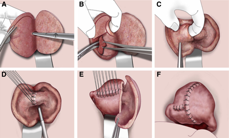 Uterine adenomyosis and adenomyoma: the surgical approach