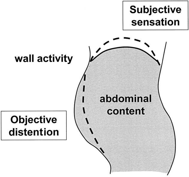Subjective Bloating May Be Related To Objective Abdominal Distention Or To  Distorted Perception. Objective Abdominal Distention May Be Due To  Increased ...