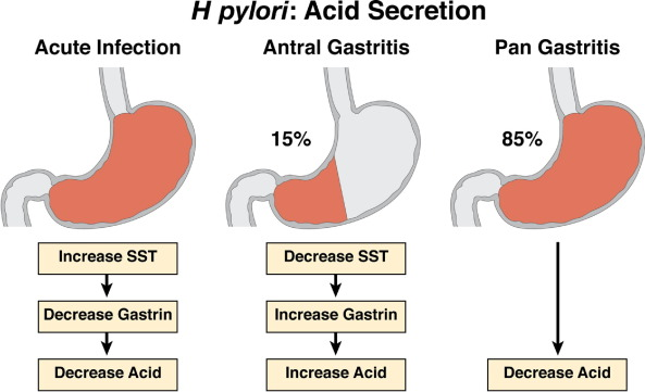 control of gastric acid secretion in health and disease sciencedirect