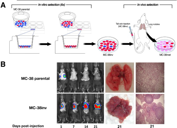 Experimentally Derived Metastasis Gene Expression Profile Predicts Recurrence And Death In Patients With Colon Cancer Sciencedirect