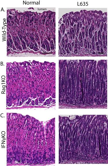 Macrophages Promote Progression Of Spasmolytic Polypeptide
