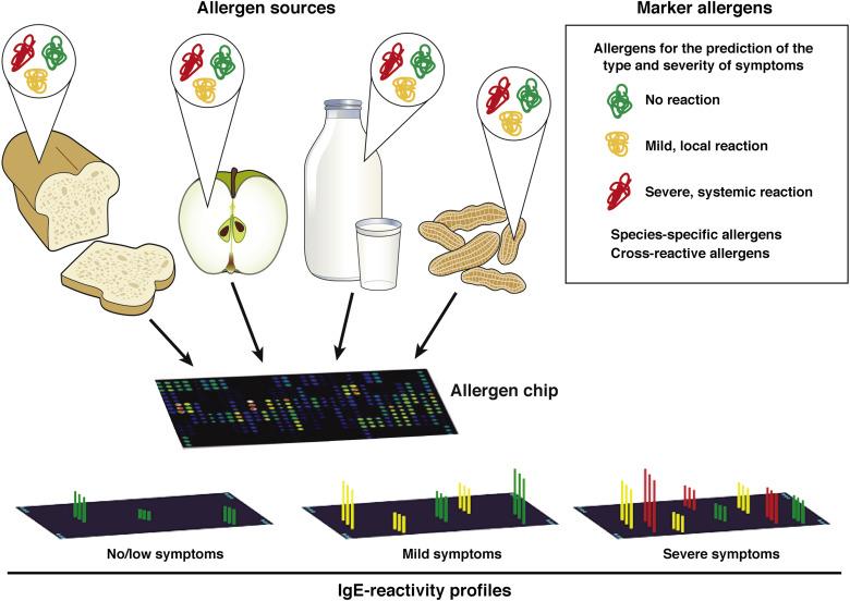 Food Allergies: The Basics - ScienceDirect