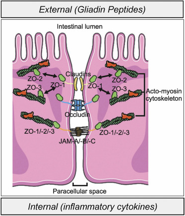 Larazotide Acetate for Persistent Symptoms of Celiac Disease