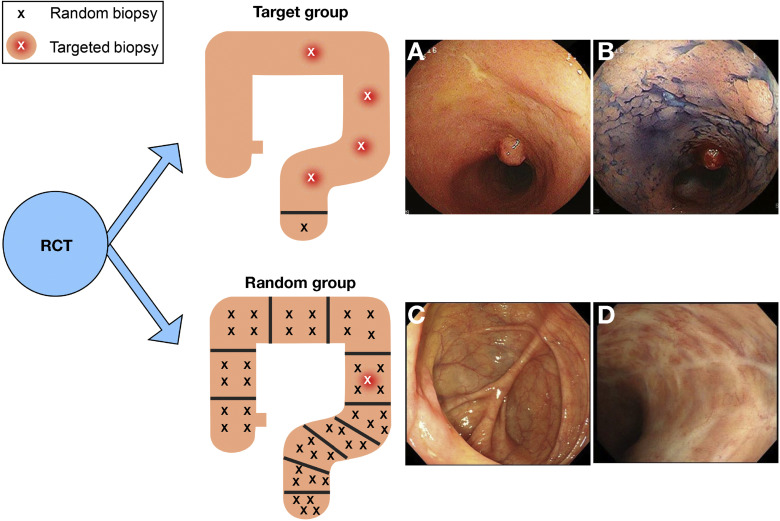 Comparison Of Targeted Vs Random Biopsies For Surveillance Of Ulcerative Colitis Associated Colorectal Cancer Sciencedirect