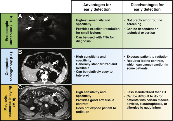 Early Detection of Pancreatic Cancer: Opportunities and