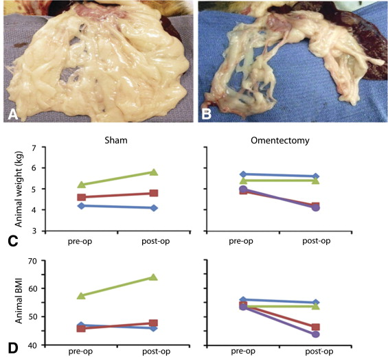 Endoscopic Visceral Fat Removal As Therapy For Obesity And Metabolic