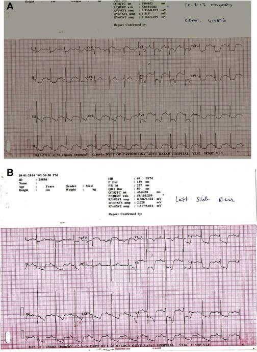 An Unusual ECG Pattern In Restrictive Cardimyopathy ScienceDirect Magnificent Ecg Pattern