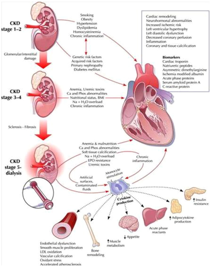 Pathophysiology of the cardio-renal syndromes types 1–5: An