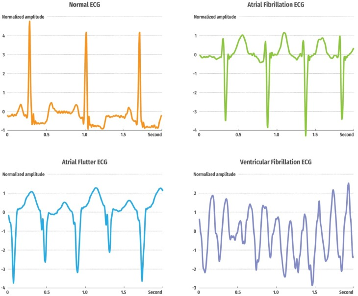 Automated detection of arrhythmias using different intervals of