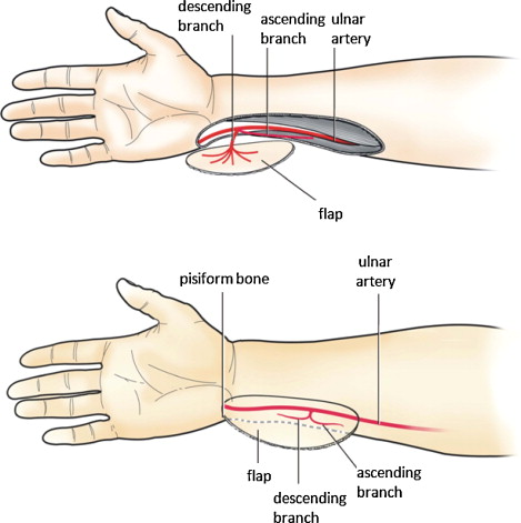 Ulnar artery distal cutaneous descending branch as free flap in hand ...