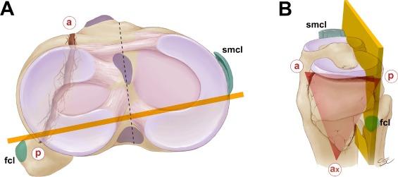 cdcf2cd11c Revisiting the Schatzker classification of tibial plateau fractures ...