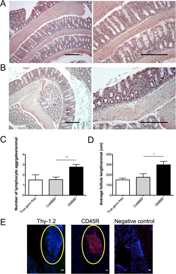 Giardiasis pathology outlines, Hpv virus ferfiaknal
