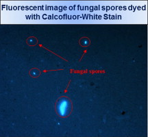 Rapid detection and quantification of fungal spores in the
