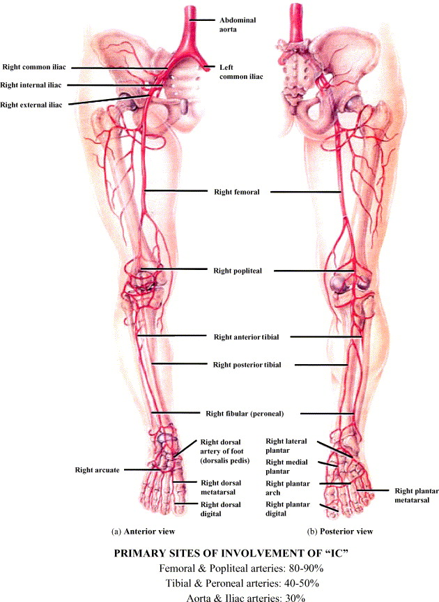 Intermittent claudication: An overview - ScienceDirect