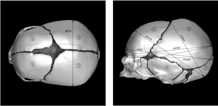 Fetal head moulding: finite element analysis of a fetal skull ...