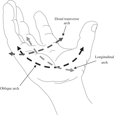 Image result for hand arches