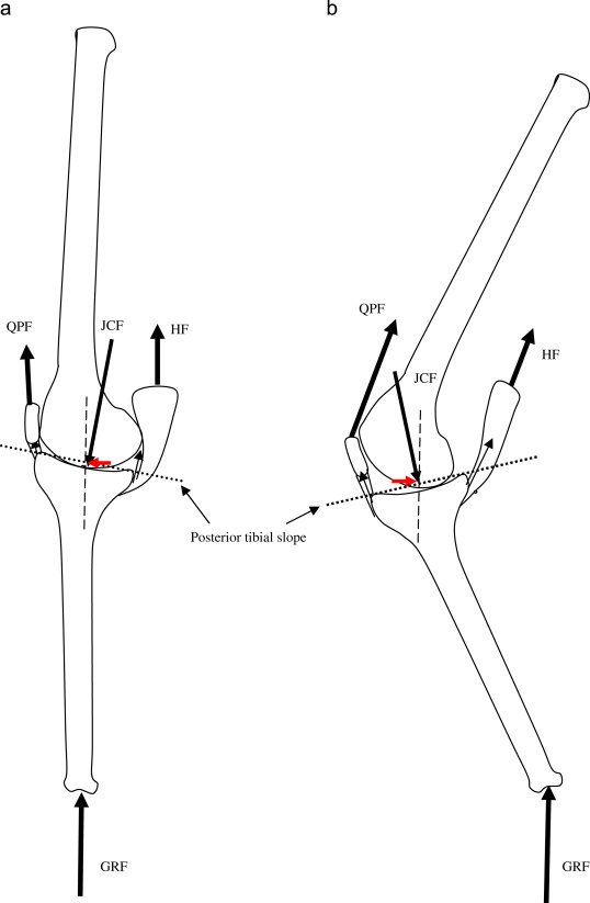 Hip extension knee flexion paradox a new mechanism for non contact download high res image 311kb ccuart Images