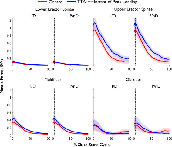 Lumbar loads and trunk kinematics in people with a
