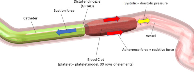 Numerical modelling of blood clot extraction by aspiration