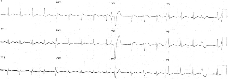 syncope and polymorphic ventricular tachycardia in the setting of a