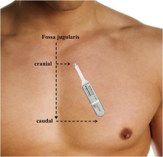 The Biomonitor 2 Insertable Cardiac Monitor Clinical
