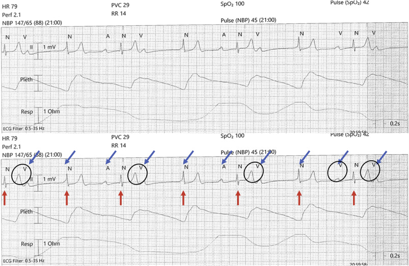 Blinded By The Height A Case Of Telemetry T Wave