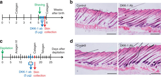 Dickkopf 1 Promotes Regression of Hair Follicles - ScienceDirect